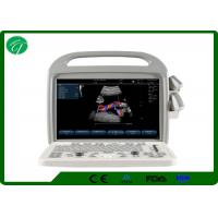 Buy cheap Automatic Fetal Color Doppler Ultrasound , Digital Ultrasound Scanner Winder Angle product