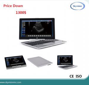 China Price Down notice Laptop ultrasound scanner on sale