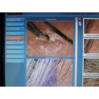 Touch Screen Hair Analyzer Machine Scalp Analyzer Equipment For Hair Scalp