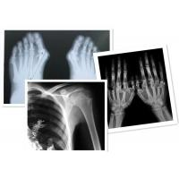 Buy cheap Thermal Digital X Ray Film Fuji Medical For Radiography Examination product