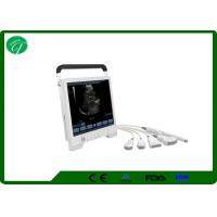 China Notebook Laptop Ultrasound Scanner Wide - Angle 15 Inch Screen Portable Ultrasound Machine wholesale