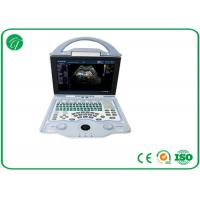 Buy cheap Full Digital Doppler Ultrasound Machine Multi - Frequency Probe With A8 Embedded System product