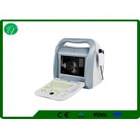 China ROSH 10.4' Ophthalmic A/B Ultrasound Scanner AM-ODU8 with imported probe/transducer wholesale