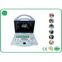 China High Definition Home Doppler Ultrasound Machine For Diagnosis Abdominal Organs wholesale