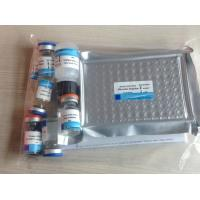 Quality Human Interleukin 6(IL-6) ELISA Kit,96T/Kit for sale