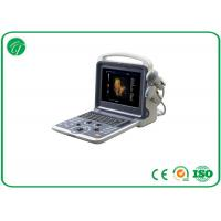12 Inch LCD Monitor 3D / 4D Color Doppler Ultrasound Scanner With 2 Probe Connectors