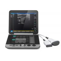 Buy cheap Gray Color S880 Portable Ultrasound Scanner Patient Monitoring Devices product