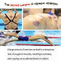 Buy cheap chinese miraculous cupping product