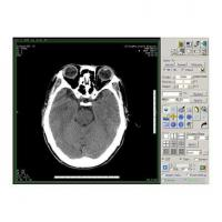 Buy cheap Image Software Software Of Dicom Image Station product