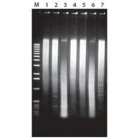 MasterPure DNA Purification Kit for Blood Version II